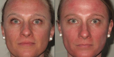 True Picture by discoverylaser, before and 3 weeks after one treatment