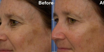 Picture by Discoverylaser, after 3 treatments