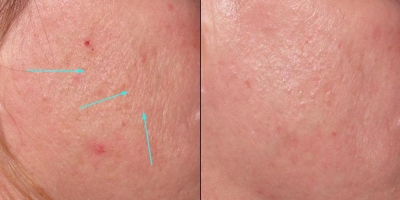 Picture by Discovery Laser, 4month after 5 treatments