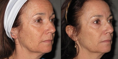 Picture by Discoverylaser, sublative Rejuvenation after 5 treatments