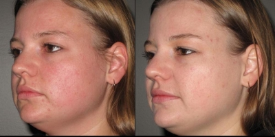 Picture by Discoverylaser, after 1 treatments