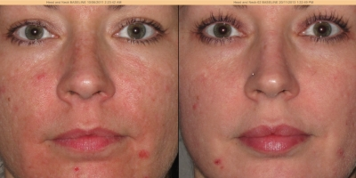 Picture by Discoverylaser, after 5 treatments
