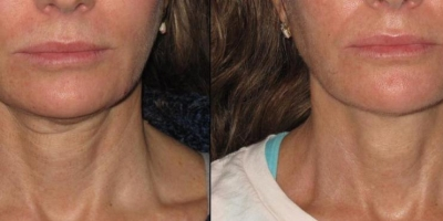 Pictuere by Discoverylaser, 2 month after 5 treatments