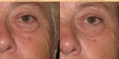 Picture by Discoverylaser, after 1 treatment