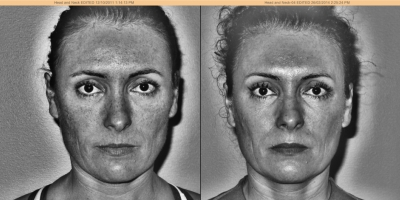 3 years later , UV Scan for hyperpigmentation