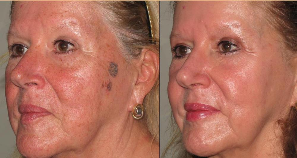 CO²RE™ Laser Fractional CO² Resurfacing — Discovery Laser