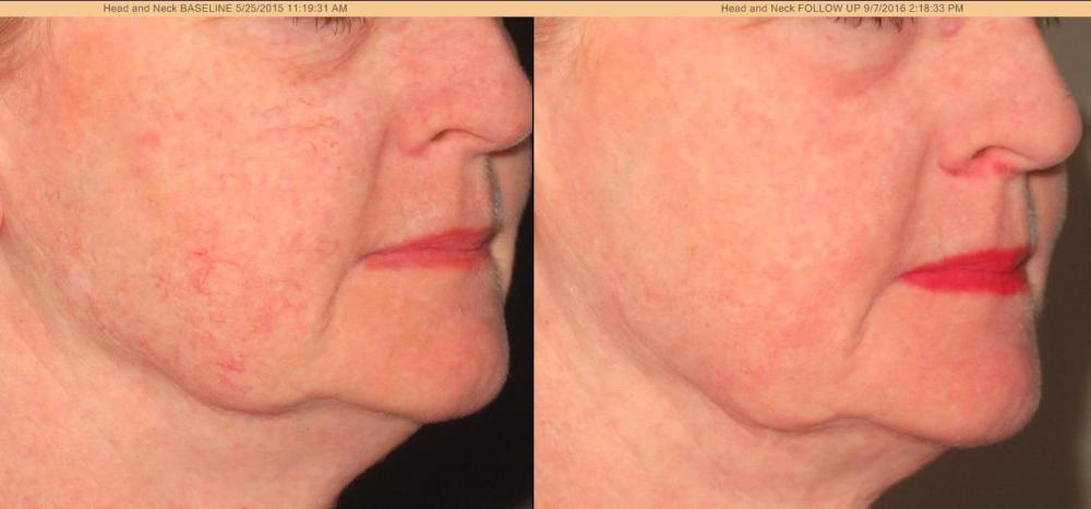 Co 178 Re Laser Fractional Co 178 Resurfacing Discovery Laser