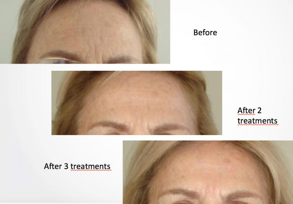 Voluderm Discovery Laser Skin Care Clinic Campbell