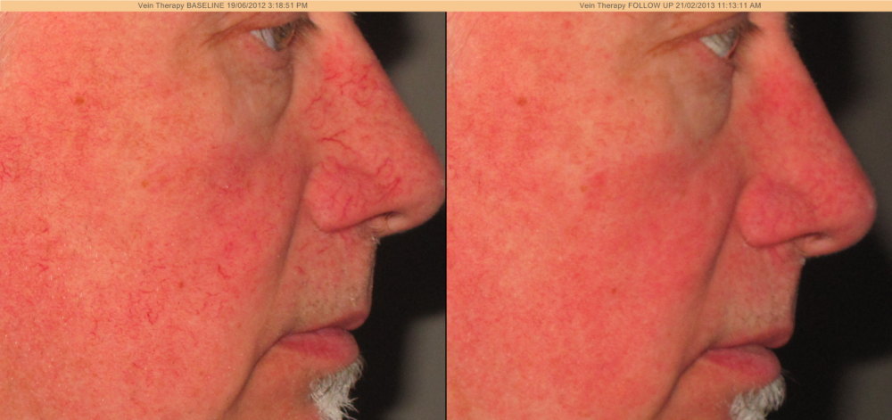 Laser Vein Removal Discovery Laser Skin Care Clinic