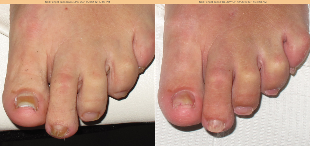 Laser Nail Fungal Infection Treatment Discovery Laser