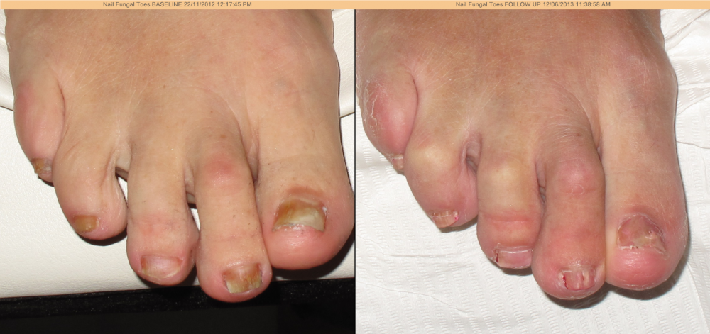 Laser Nail Fungal Infection Treatment — Discovery Laser Skin Care ...
