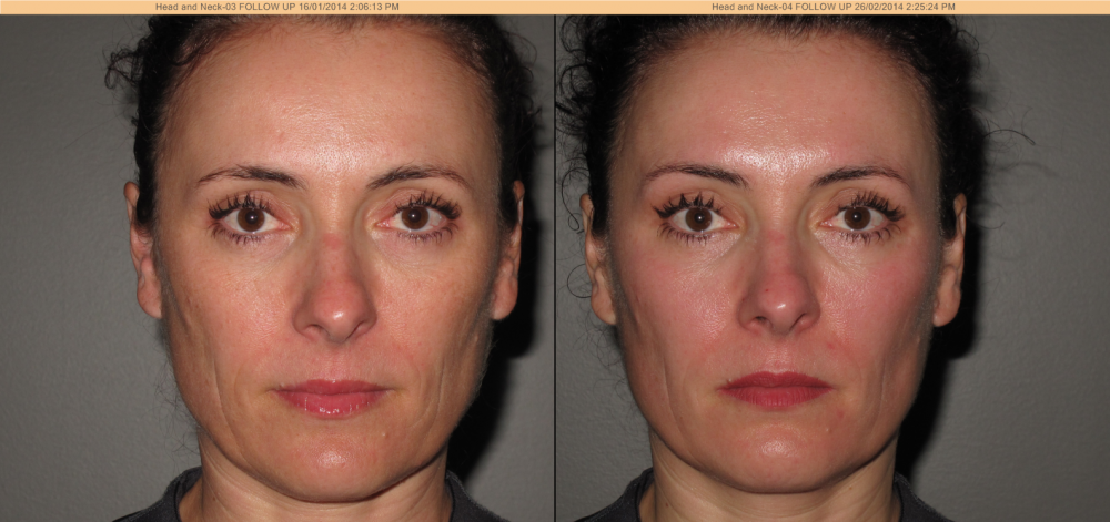 Venus Freeze Discovery Laser Skin Care Clinic Campbell