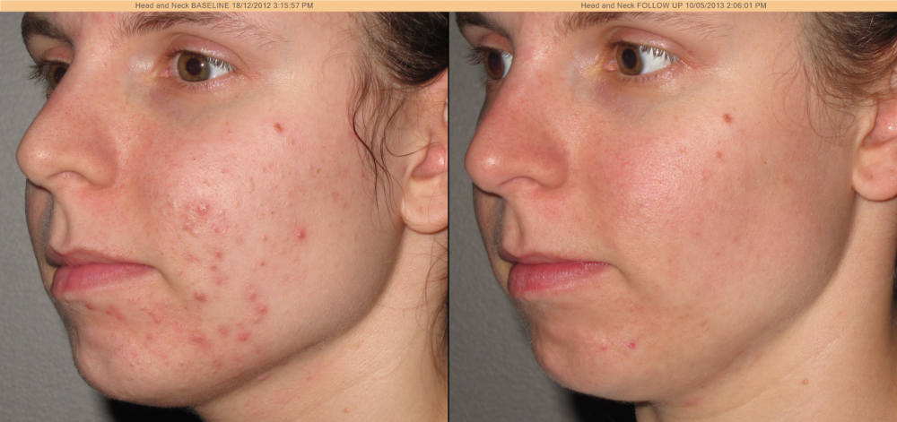 Full length facial peels for acne scars